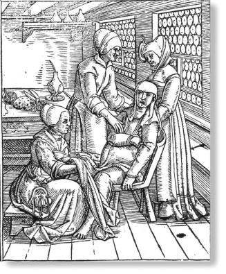 Image result for 17th century medicine